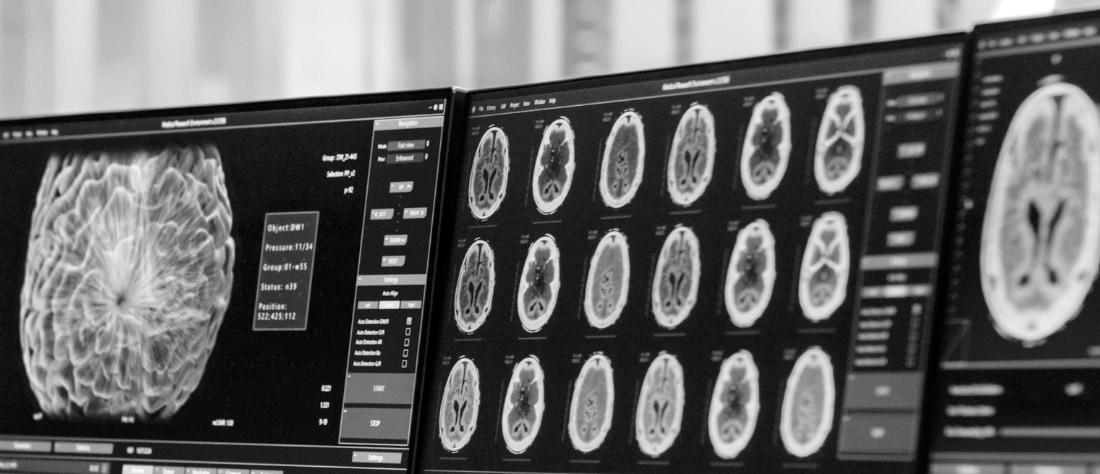 Conocer reacciones inconscientes cerebro